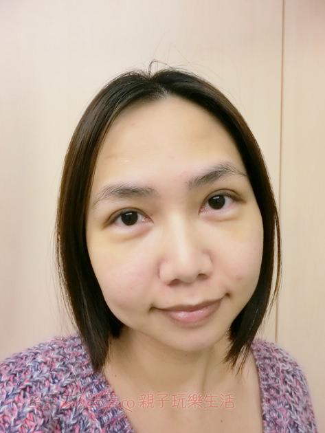 淨妍醫美∣縫/割雙眼皮手術 根本零恢復期 真的超自然