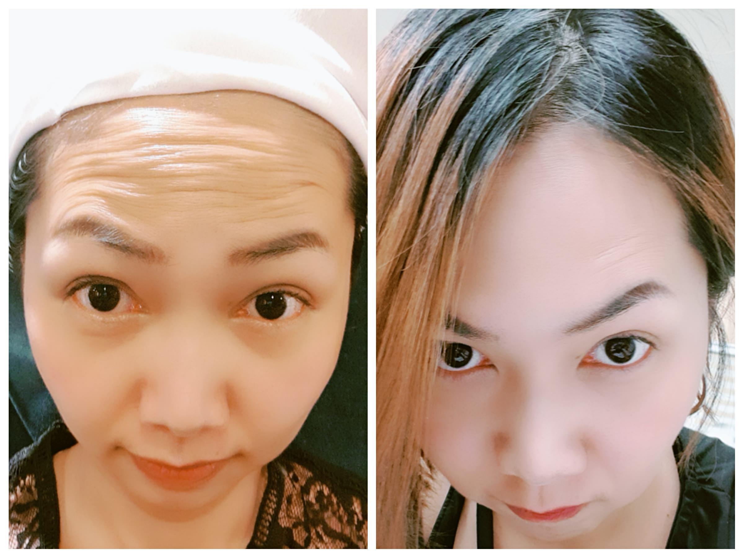 肉毒桿菌~讓我的抬頭紋從70歲變20歲@淨妍醫美
